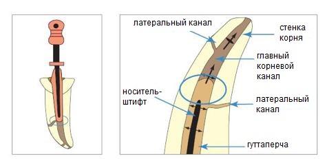 Горячая гуттаперча может вносится в корневой канал на специальном пластиковом штифте (система пломбировки «OneStep Obturator»)
