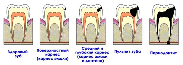 прогрессирующее разрушение зуба