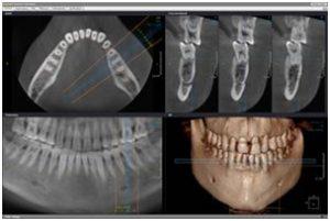 Пример компьютерной томографии зубов