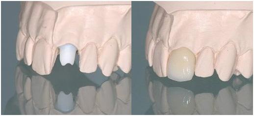 Циркониевый абатмент на имплантат + коронка из диоксида циркония (с керамическим покрытием)