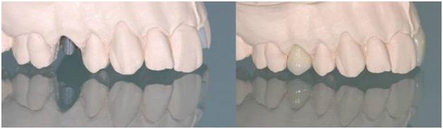 Титановый абатмент на имплантат + металлокерамическая коронка на имплантат