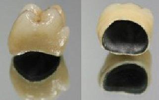 Металлокерамические коронки.