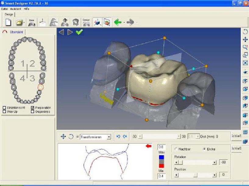 Проектирование с использованием компьютерной технологии для производства коронок