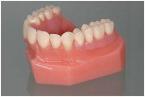 Человеческая нижняя челюсть