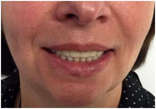 """Пример подобного вида протезирования с опорой на имплантаты, проведенного командой стоматологической клиники """"ЛеДент"""""""