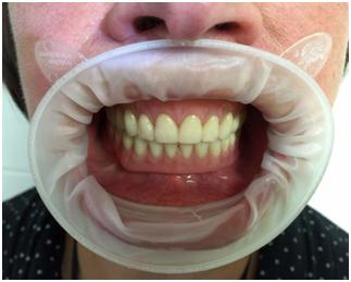 Пример подобного вида протезирования с опорой на имплантаты, проведенного командой стоматологической клиники