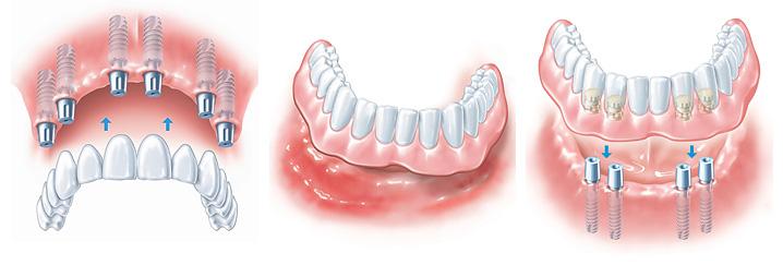 Установка имплантатов на верхнюю и нижнюю челюсти.