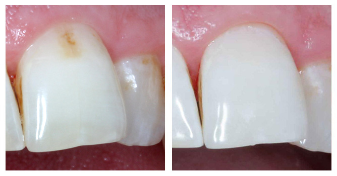 Если потерян зуб от кариеса