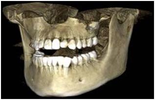 снимок КТ челюстей в Клинике Ледент