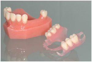 Протез на нижнюю челюсть при отсутствии большого кол-ва зубов