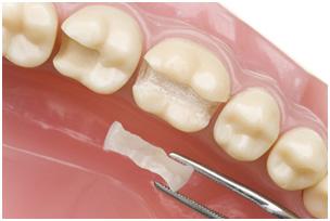 Использование вкладок в стоматологии