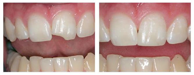 Сколы зубов
