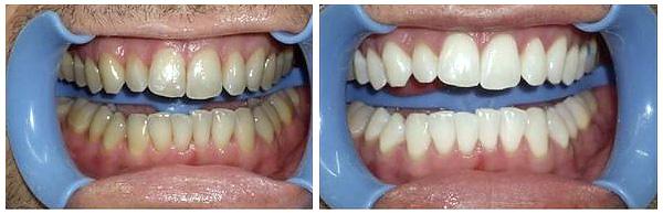 """Результат после процедуры отбеливания системой «Beyond» в стоматологии """"Ле Дент"""""""