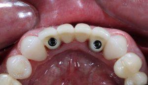 имплантация нижняя челюсть