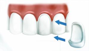 подобрать цвет зубов