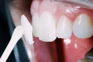 Установка керамического винира на зубы