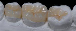 композитные материалы для протезов